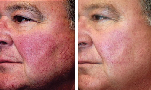 Facial vein treatments